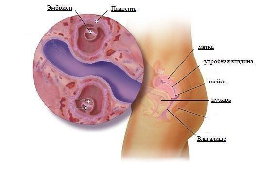 Беременность 4 недели болит живот как перед месячными
