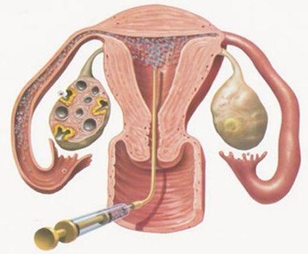 skolko-godna-sperma