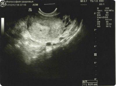 Фото УЗИ беременных по неделям 2