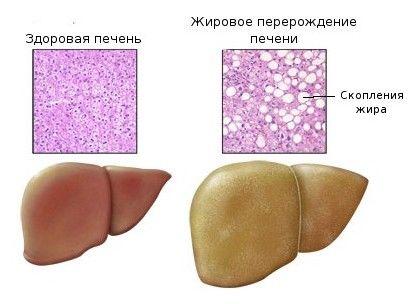 при беременности фото гепатоз